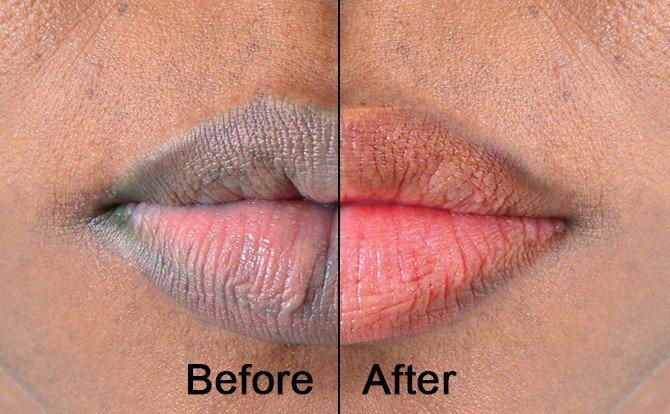 6 Remedies to Lighten Lip Pigmentation