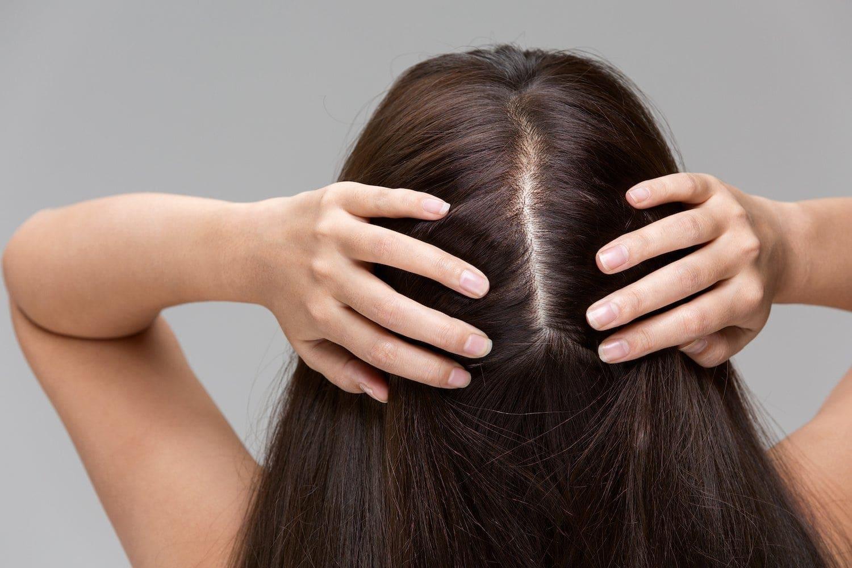 cinnamon benefits for haircinnamon benefits for hair